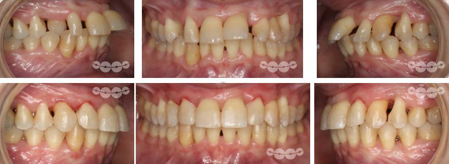 Dentes com pouca sustentação