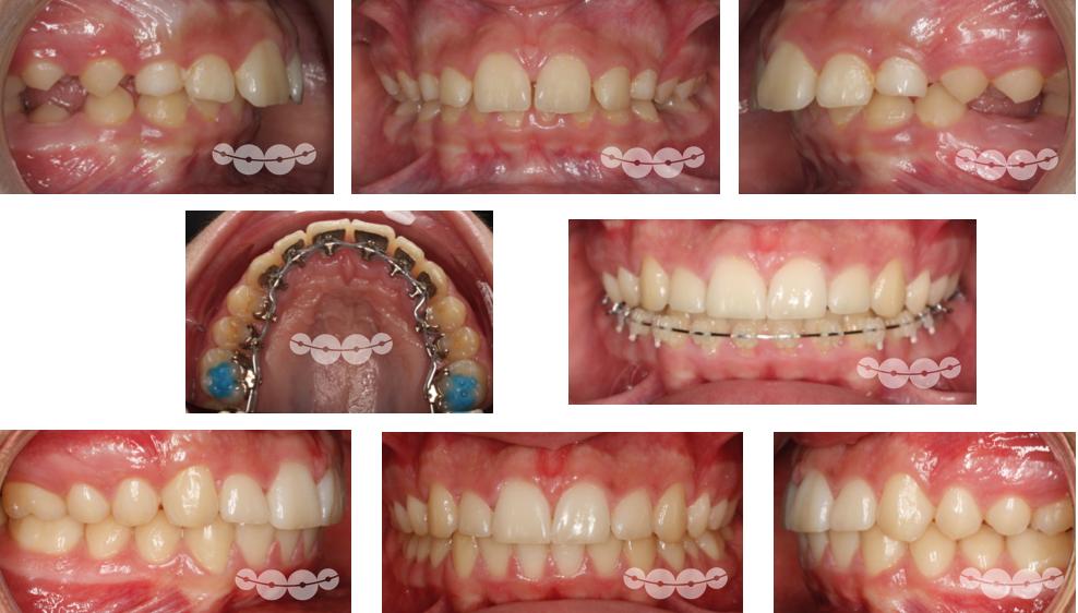 Ortodontia Lingual em Adolescentes