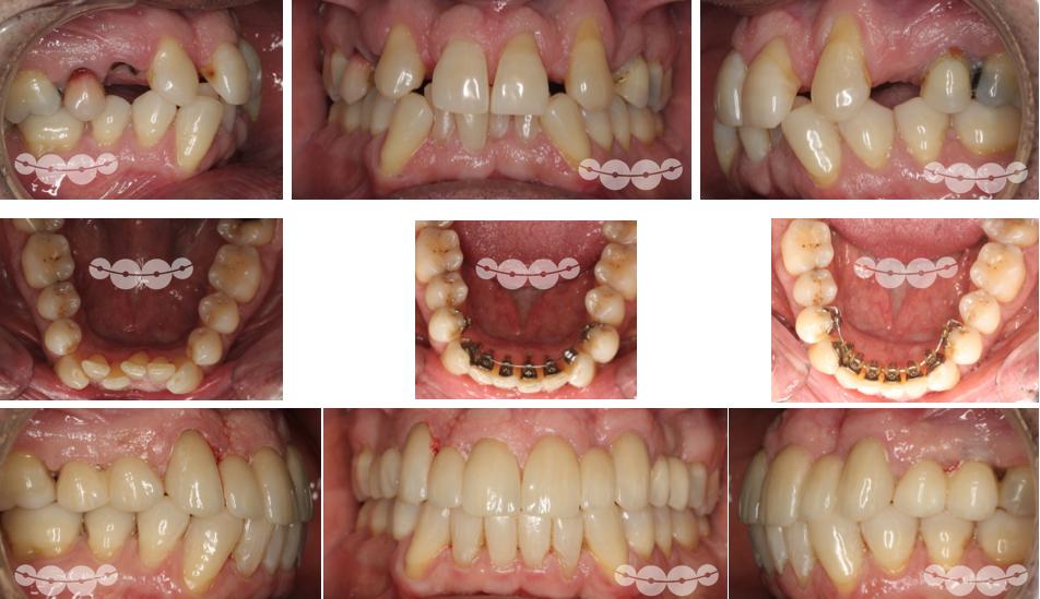 Aparelho por dentro parcial a ajudar na reabilitação oral