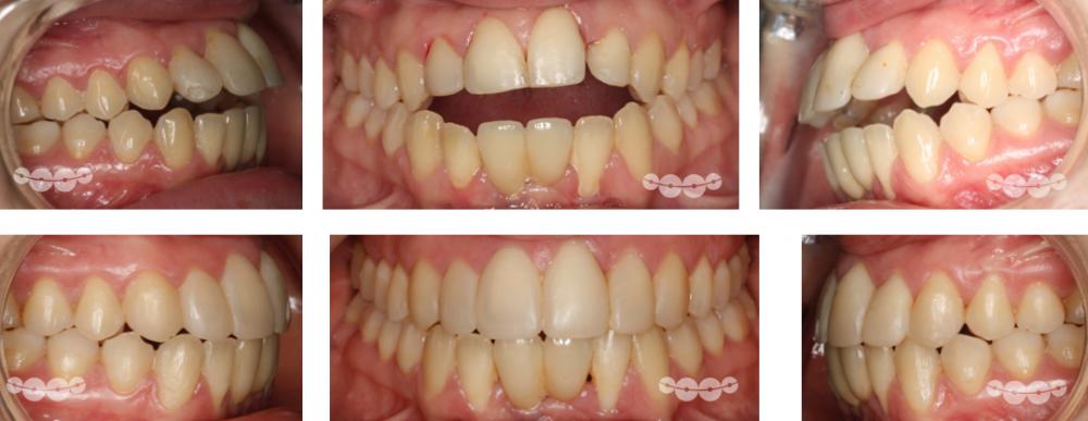 dentes da frente separados