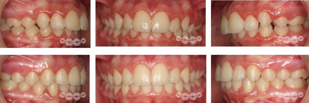 Tratamentos em 2 fases
