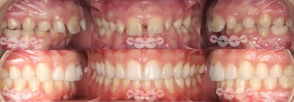 Aparelhos Funcionais e estética dentária