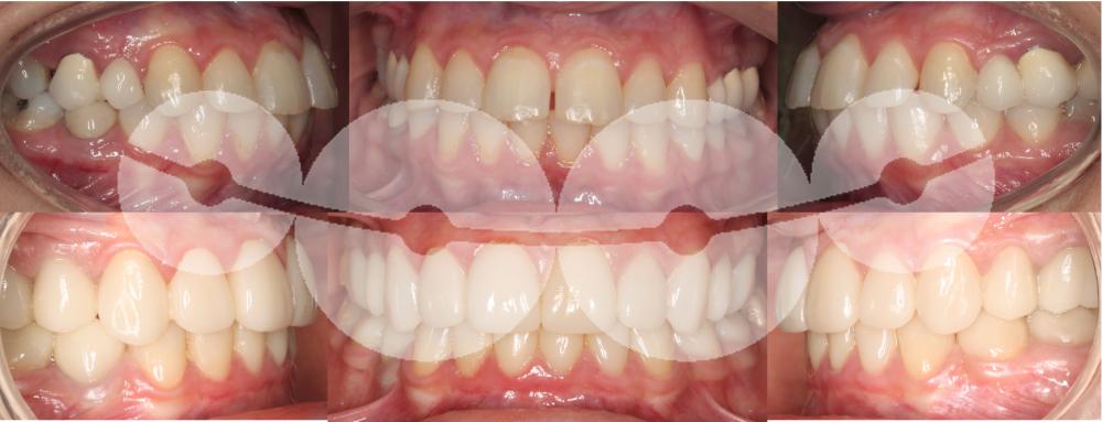 Biprotrusão dentária