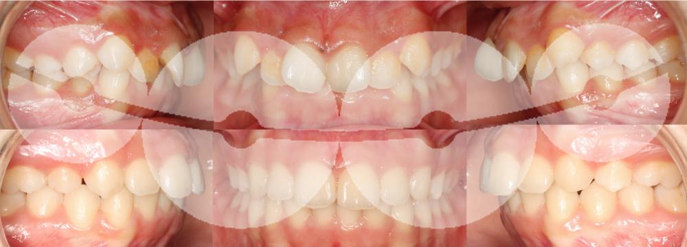 Extracções de 1ºs premolares superiores