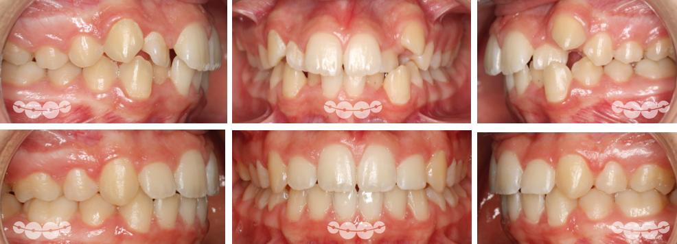 Extracções dentárias