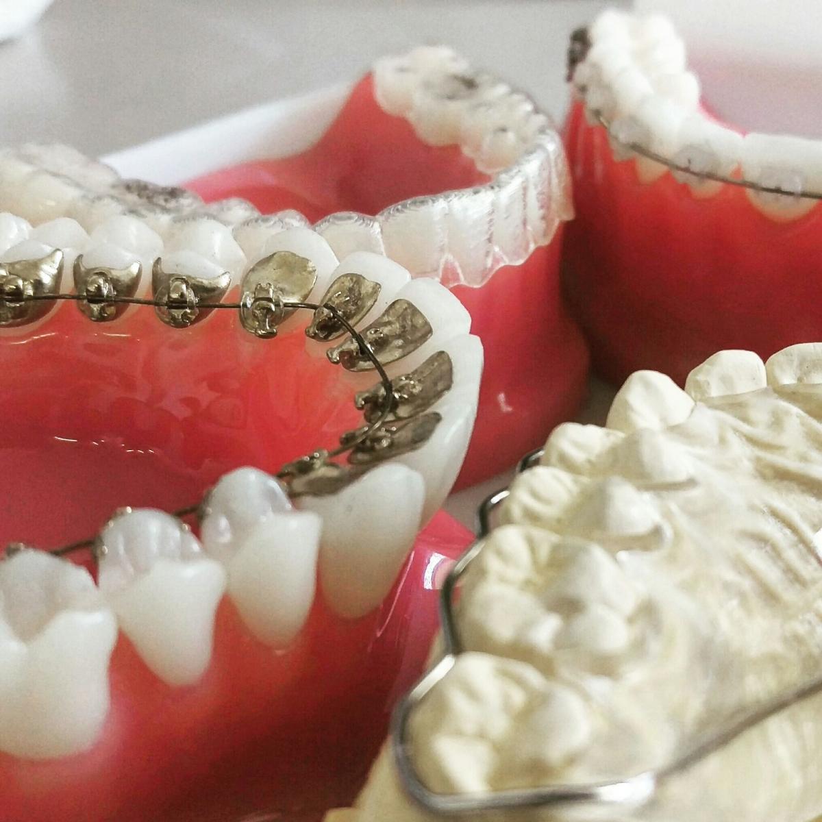Que aparelho dentário escolher?